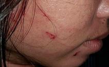 Phản ảnh cân thiếu hải sản, nữ du khách bị đánh rách mặt