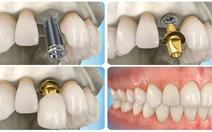 Cấy ghép Implant – Phương pháp trồng răng giả hiện đại