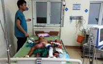 Đồ chơi lạ phát nổ, bé trai 9 tuổi dập nát hai tay