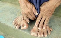 Người đàn ông có 14 ngón chân