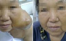 Phẫu thuật cắt bướu khổng lồ và tái tạo mặt cho bệnh nhân