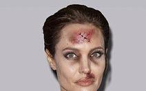 """Sao nữ """"thương tích đầy mặt"""" trong chiến dịch chống bạo lực gia đình"""