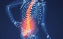 Nắn cột sống khi đau lưng có hiệu quả