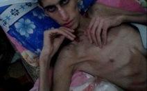 Hết chó mèo chuyển sang ăn cỏ, dân Syria đang chết dần vì đói