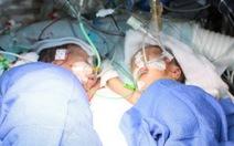 Tách thành công cặp song sinh dính liền 8 ngày tuổi
