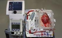 Thiết bị tạo bước ngoặc trong cấy ghép tim