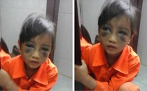 Học sinh lớp 1 bị cô giáo đánh tím mặt vì viết sai chính tả