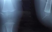 Gắp kim khâu bị kẹt ở đầu gối