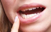 Nguy cơ ung thư miệng và phòng ngừa bệnh