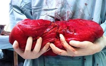 Cắt khối u mỡ nặng hơn 6kg trong ổ bụng