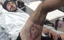 """Úc: iPhone 6 nổ để """"dấu ấn"""" trên đùi"""