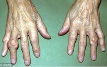 Bệnh Gout và nỗi sợ hãi kinh hoàng