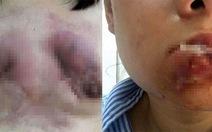 Mặt mũi, ngực... biến dạng vì giải phẩu thẩm mỹ