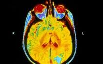 Xạ trị não bộ không giúp chữa trị căn bệnh ung thư phổi di căn