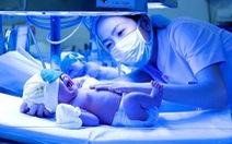 Không nên chủ quan khi thấy trẻ sơ sinh bị vàng da