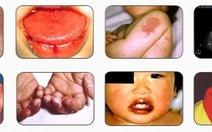 Nhiều bệnh nhi mắc bệnh hiếm Kawasaki