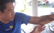 Suýt bị tháo khớp tay sau khi công an xã mời làm việc