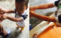 Điều tra vụ hiệu trưởng dốc đầu bé 5 tuổi vào máy vặt lông gà