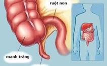 Viêm ruột thừa có thểtrị bằng kháng sinh?