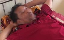 Một người dân tố bị công an đâm chìm thuyền, đánh nhập viện