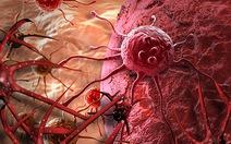 Giải pháp giảm nguy cơ ung thư cho người mắc bệnh u bướu