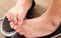 Nhận biết và điều trị bệnh suy giãn tĩnh mạch chi dưới