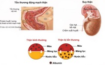 Biến chứng thận do tăng huyết áp