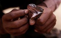 Những điều nên và không nên làm khi bị rắn độc cắn