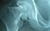 Bệnh nhân tử vong sau phẫu thuật thay chỏm xương đùi