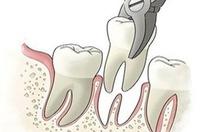 Đoán sai bệnh, nhổ muốn sạch răng cũng không hết đau