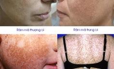 Rối loạn tăng sắc tố da mặt