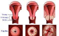 Dấu hiệu ung thư cổ tử cung