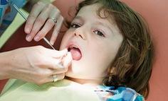 Chăm sóc hệ răng sữa cho bé