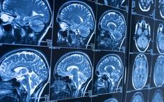 Có thể dự báo bệnh Alzheimer trước 10 năm
