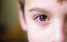 Chớ chủ quan với bệnh đau mắt đỏ