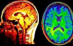 Thuật toán có khả năng nhận diện người đang muốn tự tử