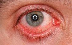 Bệnh viêm kết mạc cấp - hiểu biết và phòng bệnh