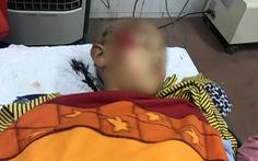 Sập lan can trường tiểu học, 11 học sinh bị thương