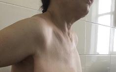 Nữ bệnh nhân có khối u ngực to vượt mặt