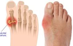 Cách phòng chống bệnh gout