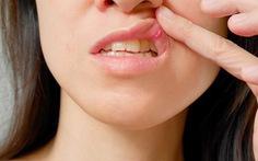 Các bệnh trong khoang miệng thường gặp