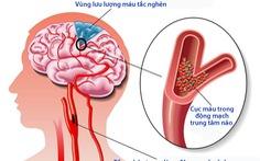 Không nên chủ quan với bệnh tai biến mạch máu não nhẹ