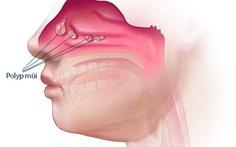 Polyp mũi - Nguyên nhân và cách điều trị