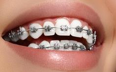 Niềng răng – một cách làm đẹp