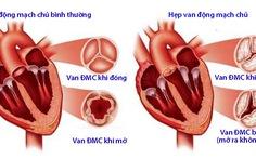Hen tim: Những điều cần biết