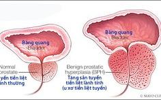 Những triệu chứng u xơ tiền liệt tuyến thường gặp