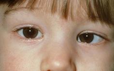 Lác mắt, nguyên nhân và cách điều trị