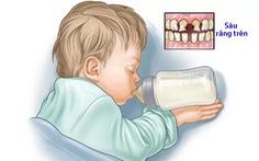 Phòng ngừa hội chứng sâu răng do bú bình