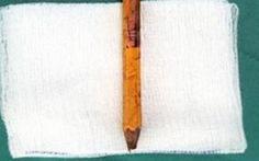 Bạn nghịch dại, một học sinh bị bút chì đâm vào mông 8cm
