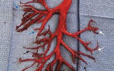 Bệnh nhân Mỹ ho ra cục máu đông có hình cây phế quản